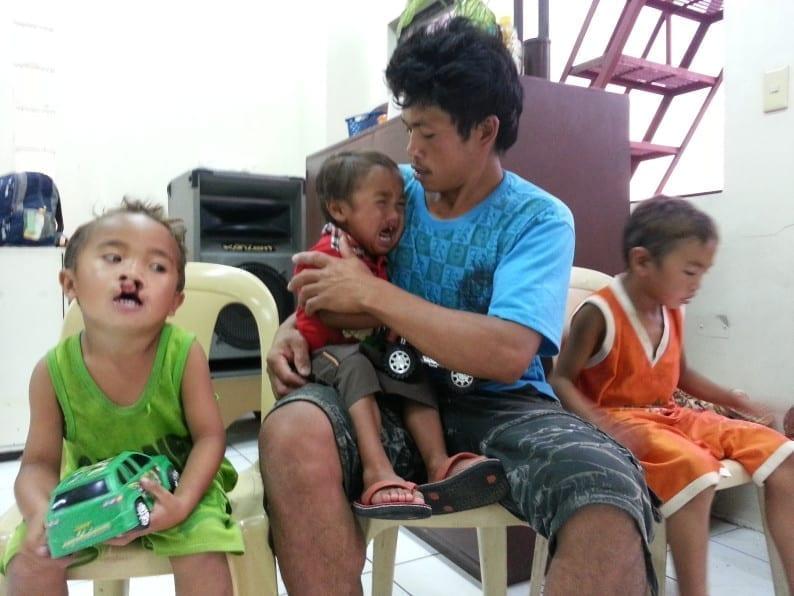 Kinder mit Gaumen- Kieferspalte