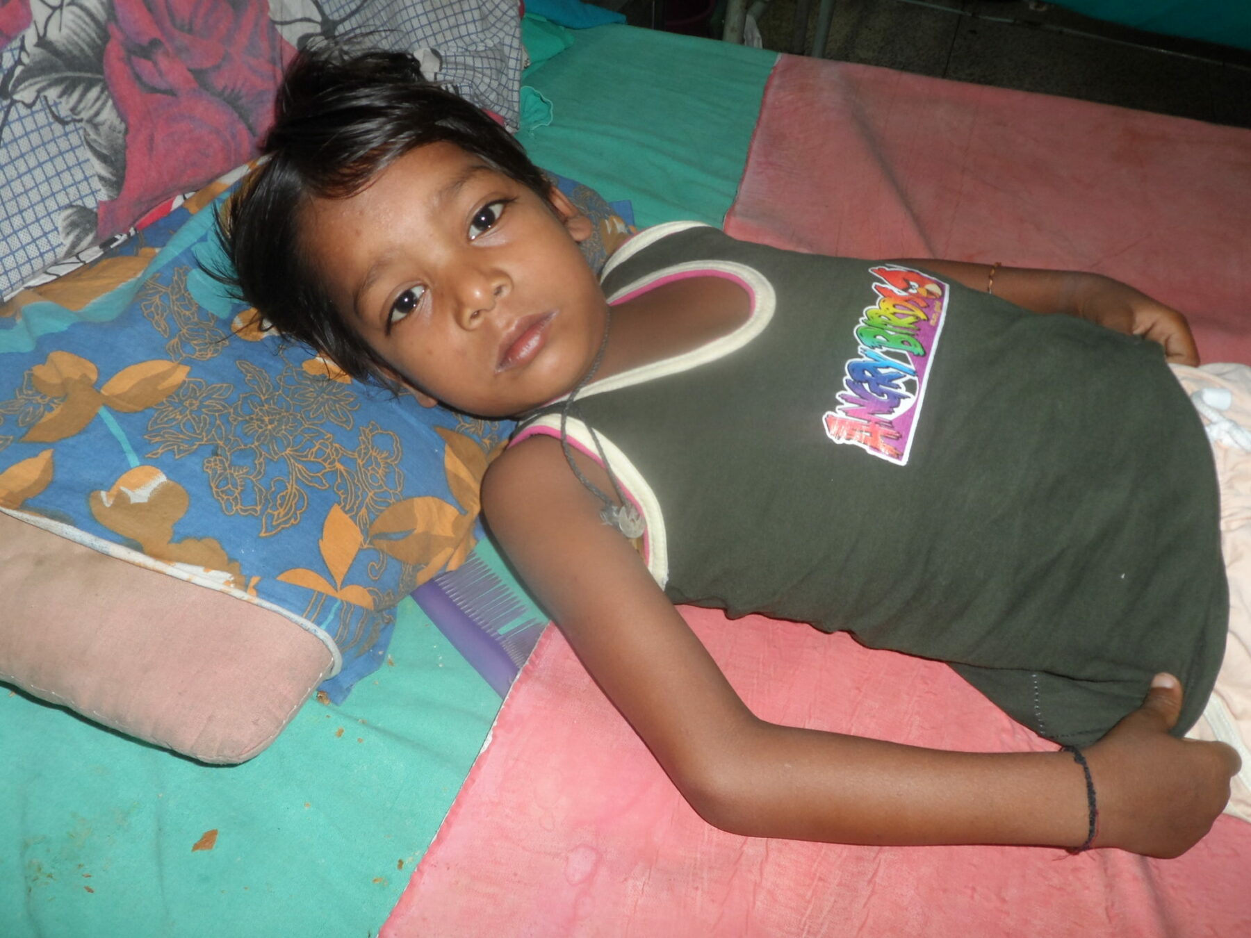 Tuberkulose bei Kindern
