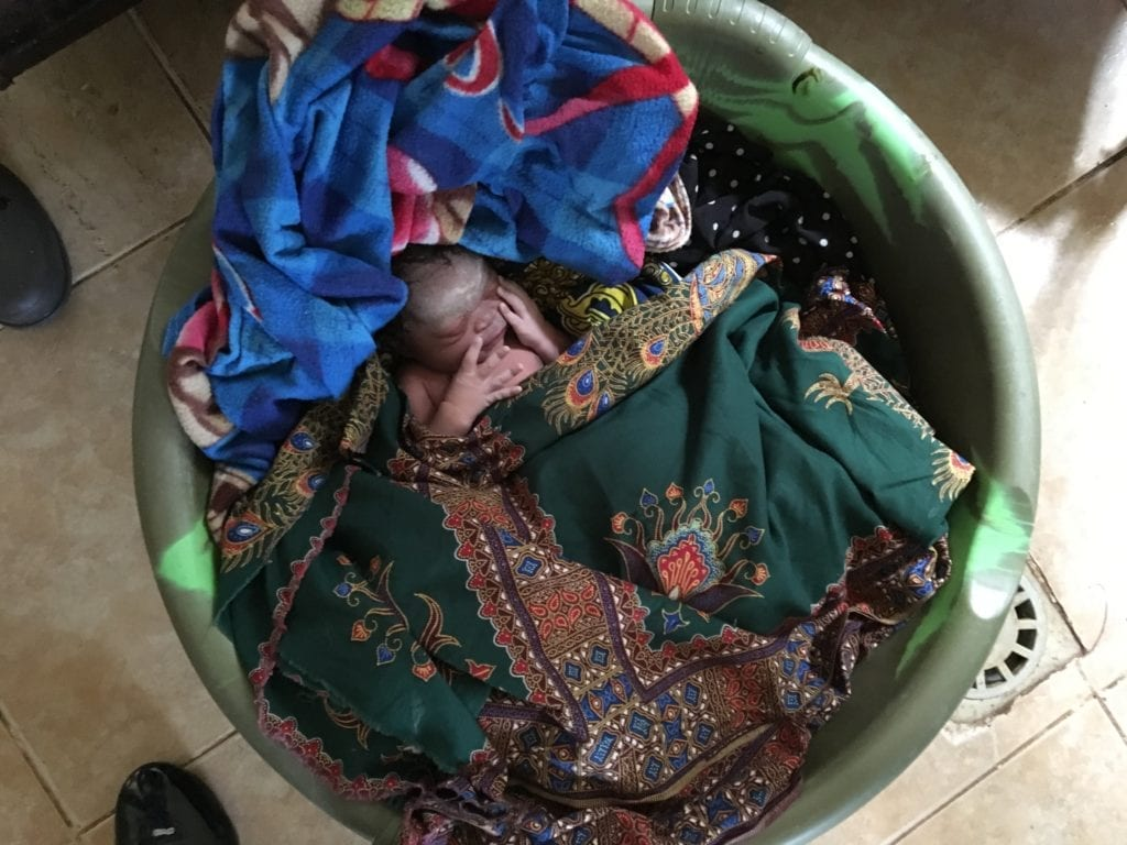 Säugling nach Kaiserschnitt
