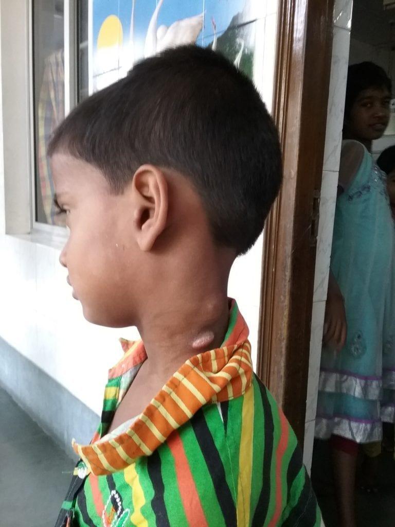 Lymphknoten-Tuberkulose