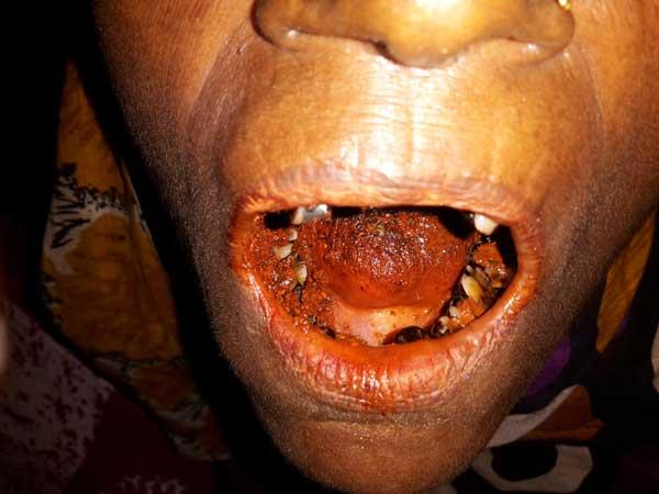 Zerstörte Zähne von Betelnüssen